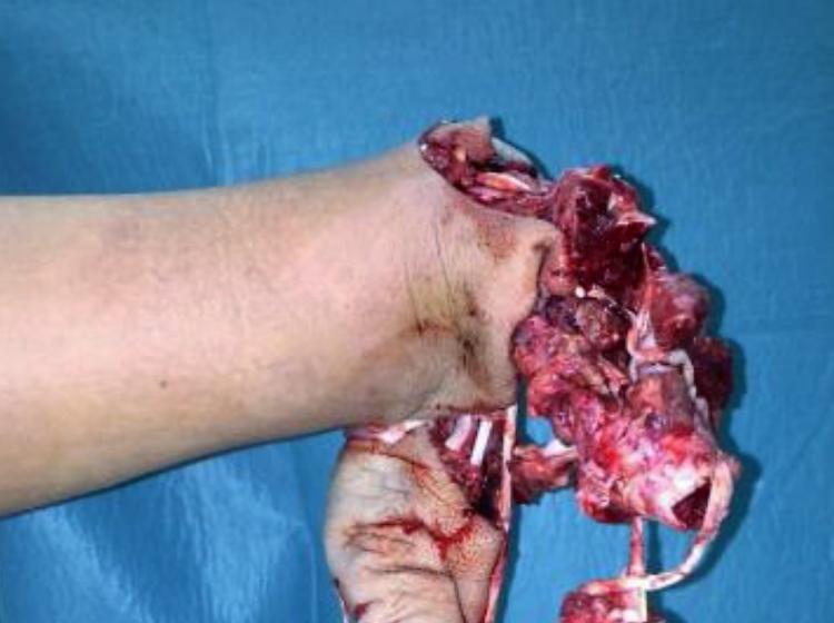 Težke poškodbe in invalidnost zaradi uporabe pirotehničnih sredstev