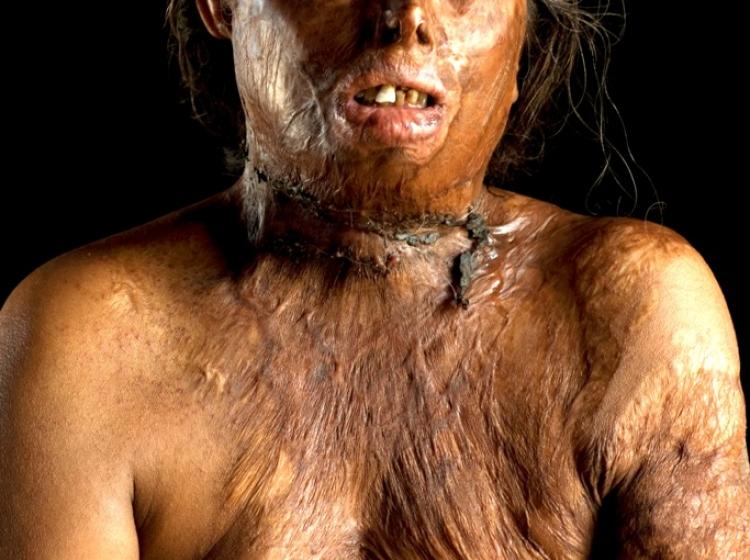 Polivanje žensk s kislino zaradi zavrnite poroke ali spolnega odnosa (op. ur.: pretresljiva slika)