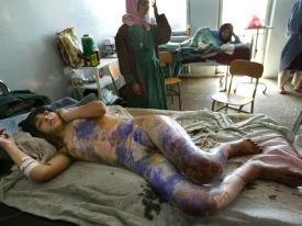 Mednarodni dan, ki posebej opozarja na velik družbeni problem nasilja nad ženskami (op. ur. pretresljivi sliki)